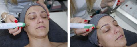 Mezoterapia - Omladenie a spevnenie pokožky